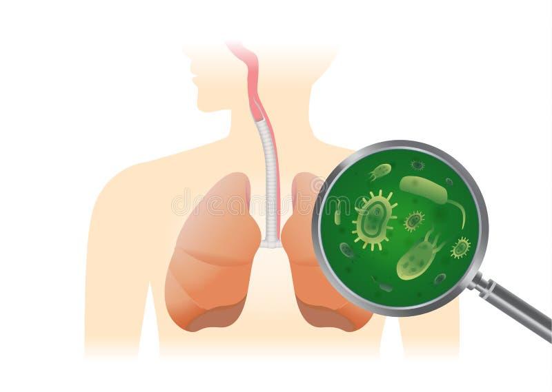Εύρεση του ιού στον ανθρώπινο πνεύμονα με έναν πιό magnifier διανυσματική απεικόνιση