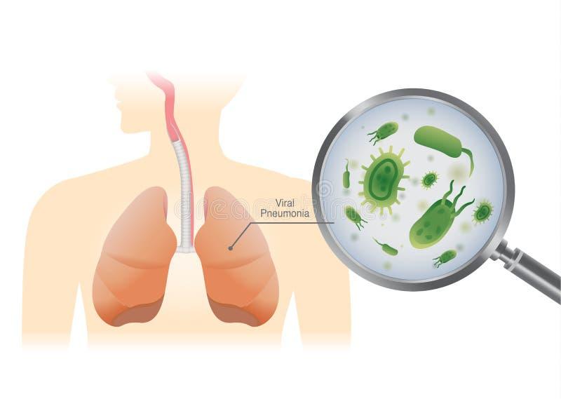 Εύρεση του ιού στον ανθρώπινο πνεύμονα με έναν πιό magnifier απεικόνιση αποθεμάτων