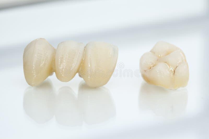 Ελεύθερες κεραμικές οδοντικές κορώνες μετάλλων στοκ εικόνες