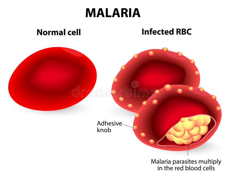 ελονοσία Κανονικά και μολυσμένα κόκκινα κύτταρα αίματος διανυσματική απεικόνιση