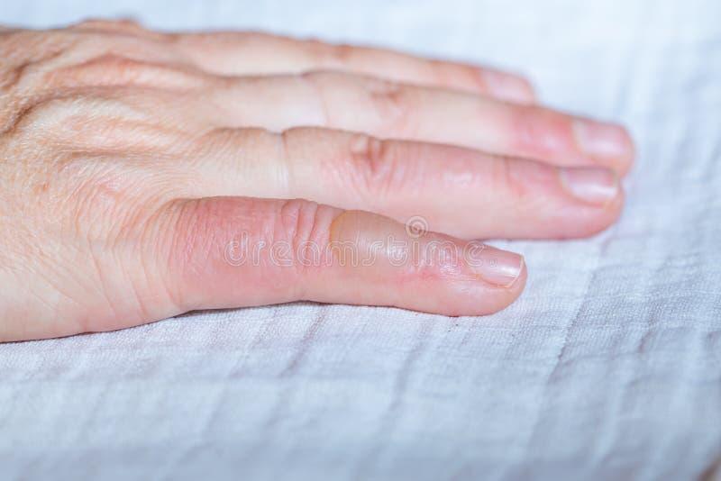 Ζεματισμένο χέρι Φουσκάλα στο δάχτυλό σας στοκ εικόνες με δικαίωμα ελεύθερης χρήσης