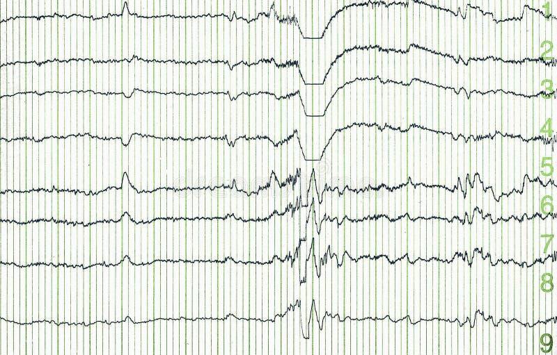 ηλεκτρο encephalogramme στοκ εικόνα με δικαίωμα ελεύθερης χρήσης