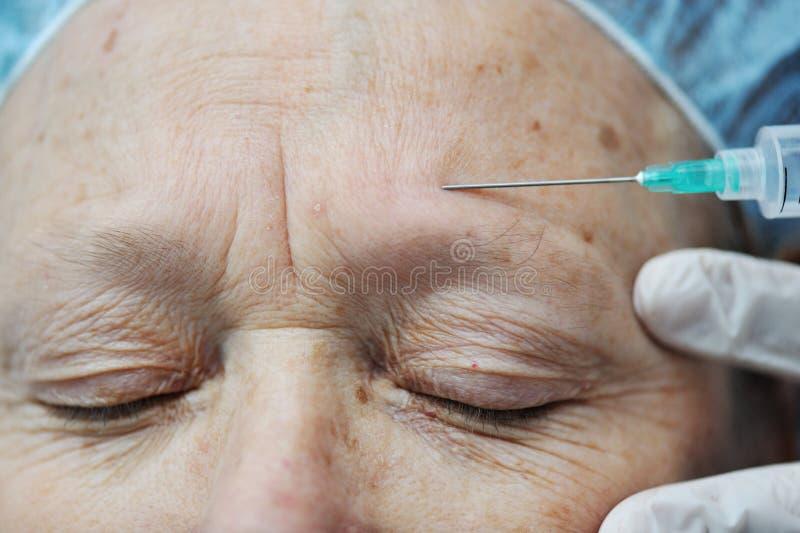 ηλικίας θηλυκή λήψη BOTOX® στοκ φωτογραφία με δικαίωμα ελεύθερης χρήσης