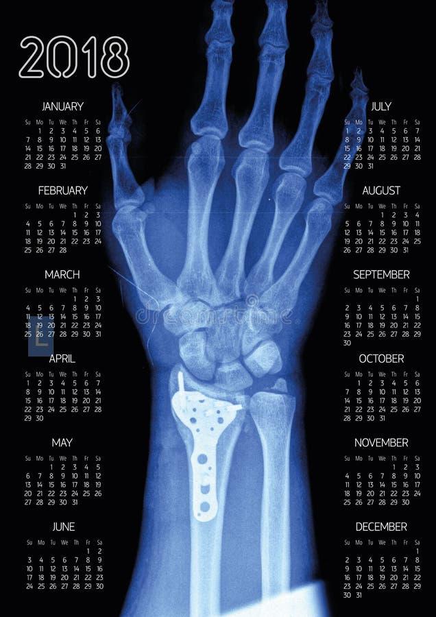 Ημερολόγιο τοίχων χεριών ακτίνας X 2018 διανυσματική απεικόνιση
