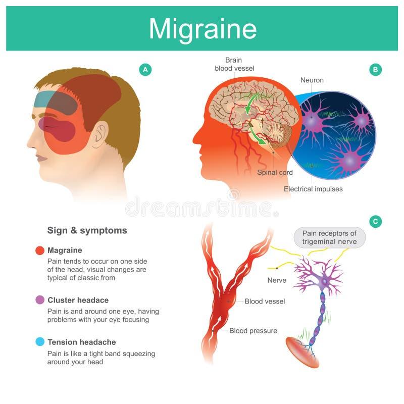 ημικρανία Ο πονοκέφαλος, πόνος, τείνει cooccur σε μια πλευρά του headP διανυσματική απεικόνιση