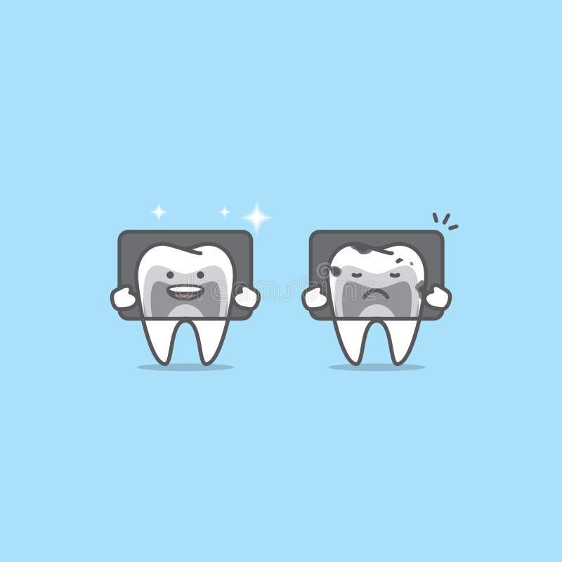 Η ακτίνα X με τους χαρακτήρες δοντιών συγκρίνει τον καλό & κακό όρο illustr απεικόνιση αποθεμάτων