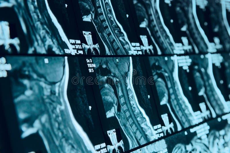 Η ανίχνευση κεφαλιών και λαιμών MRI, στοκ εικόνες με δικαίωμα ελεύθερης χρήσης