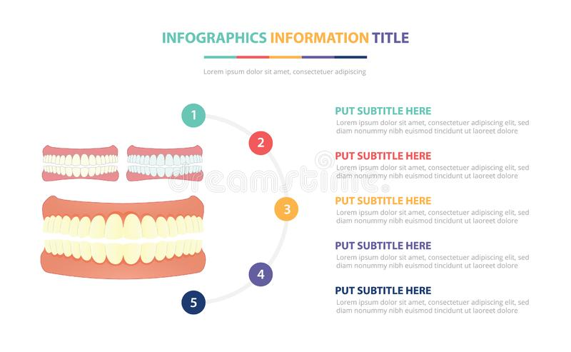 Η ανθρώπινη έννοια δοντιών ή infographic προτύπων δοντιών με πέντε σημεία απαριθμεί και διάφορο χρώμα με το καθαρό σύγχρονο άσπρο διανυσματική απεικόνιση
