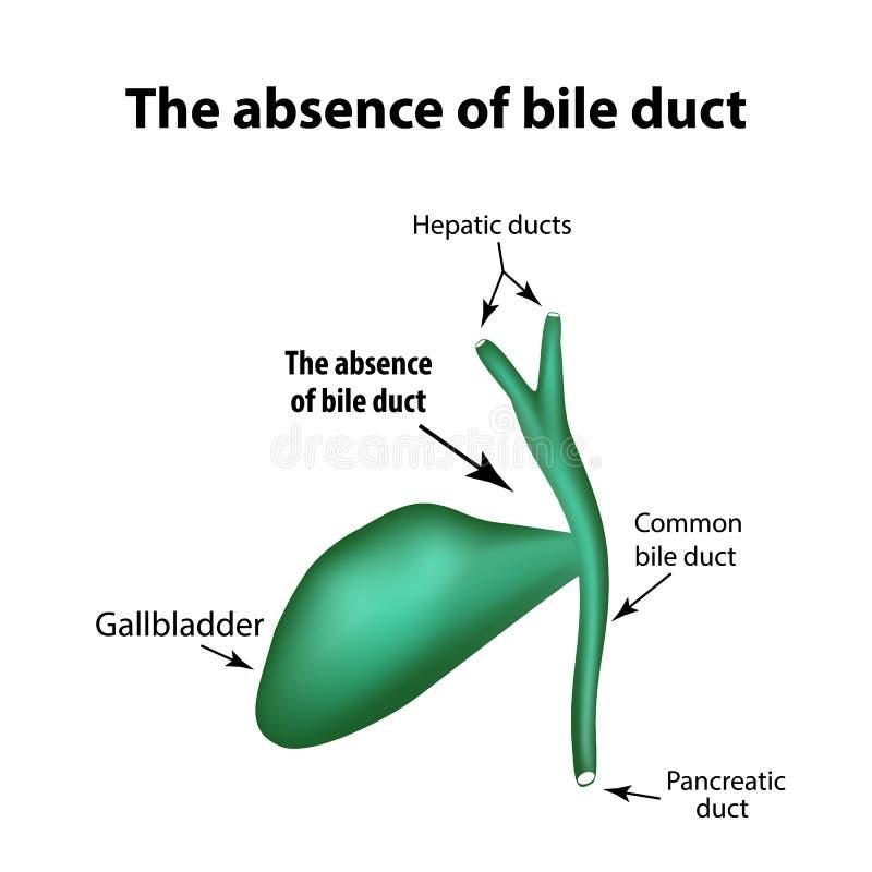 Η απουσία bile-duct Παθολογία της χοληδόχου κύστης Χοληδόχος κυστίτιδα διανυσματική απεικόνιση