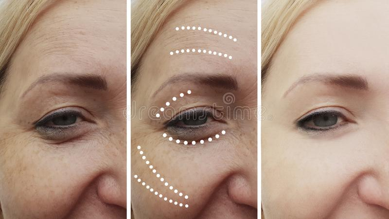 Η γυναίκα ζαρώνει πριν και μετά από την ανύψωση των maturetherapy cosmetology ανελκυστήρων διαδικασιών επεξεργασίας επεξεργασιών  στοκ εικόνα με δικαίωμα ελεύθερης χρήσης