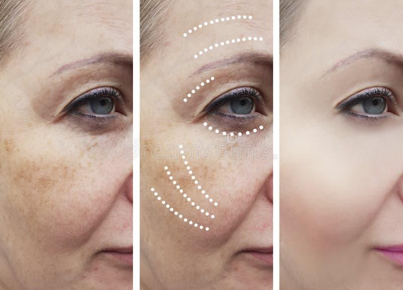 Η γυναίκα ζαρώνει πριν και μετά από την ανύψωση cosmetology ανελκυστήρων διαδικασιών επεξεργασίας κολάζ των ώριμων επεξεργασιών ε στοκ φωτογραφία με δικαίωμα ελεύθερης χρήσης