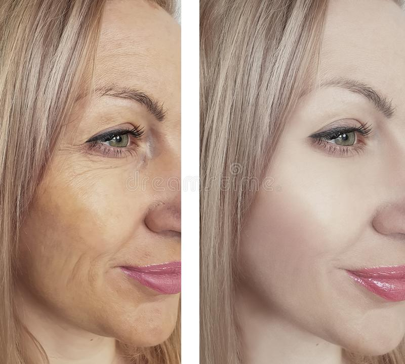 Η γυναίκα ζαρώνει πριν και μετά από την αφαίρεση διαδικασίας επίδρασης στοκ εικόνα