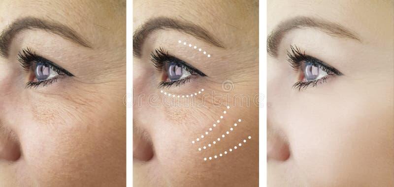Η γυναίκα ζαρώνει πριν και μετά από το πρόβλημα αφαίρεσης δερματολογίας ανανέωσης επεξεργασίας στοκ φωτογραφίες