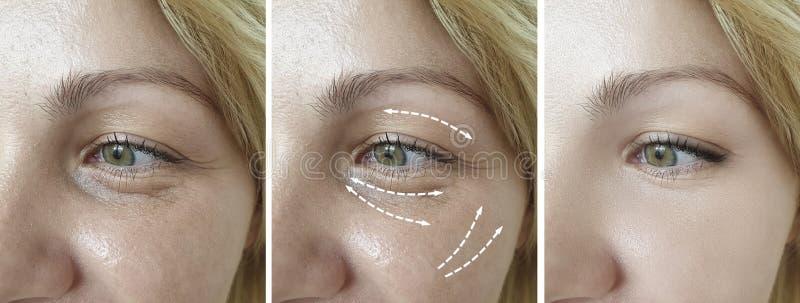 Η γυναίκα ζαρώνει την πρησμένη αφαίρεσης αντίθεση θεραπείας ανύψωσης regener blepharoplasty πριν από την κρεμώντας διόρθωση διαφο στοκ εικόνες
