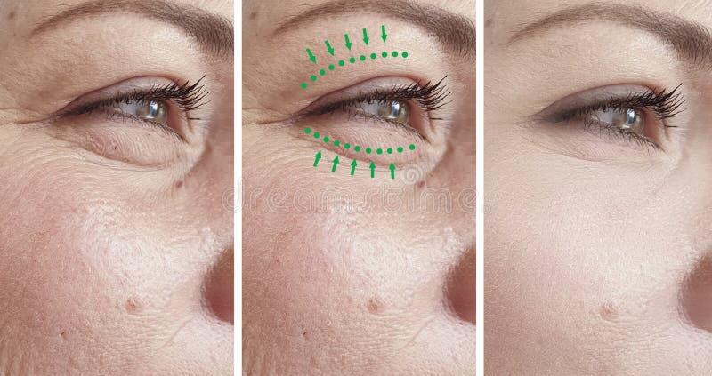 Η γυναίκα ζαρώνει την πρησμένη αφαίρεση ανυψωτικός τη blepharoplasty αντίθεση θεραπείας πριν από την κρεμώντας διόρθωση διαφοράς  στοκ φωτογραφίες