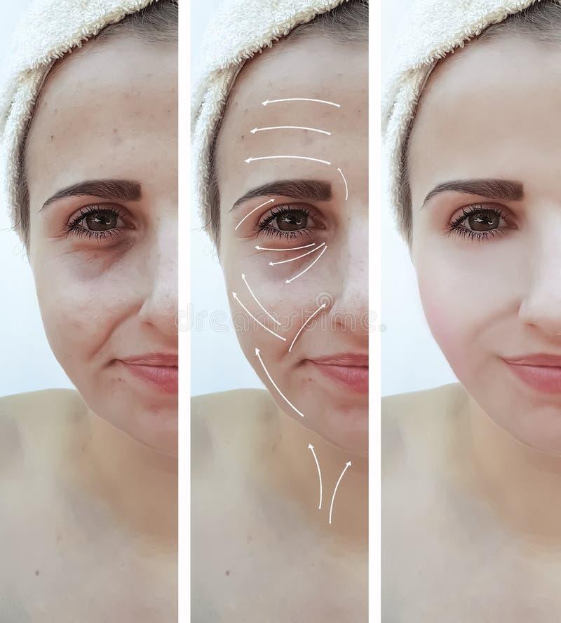 Η γυναίκα ζαρώνει το πρησμένο cosmetology επίδρασης πρόσωπο biorevitalization επεξεργασίας πριν και μετά από τις διαδικασίες, διό στοκ φωτογραφίες