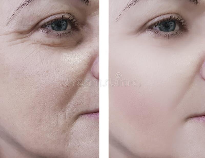 Η γυναίκα ζαρώνει το beautician στον ασθενή προσώπου πριν και μετά από την ανύψωση των καλλυντικών διαδικασιών στοκ εικόνες