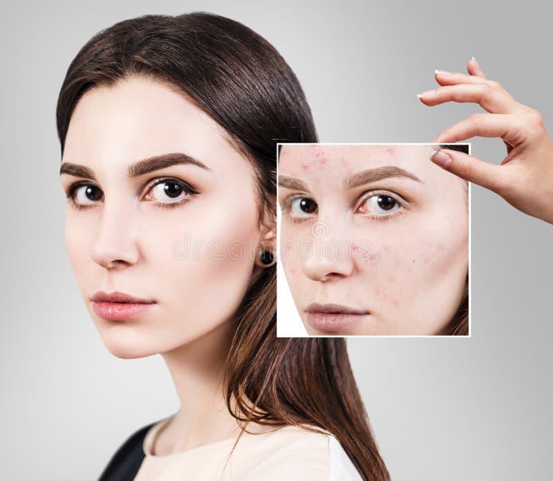 Η γυναίκα παρουσιάζει φωτογραφία με το κακό δέρμα πριν από την επεξεργασία στοκ εικόνες
