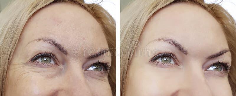 Η γυναίκα προσώπου ζαρώνει πριν και μετά στοκ φωτογραφία