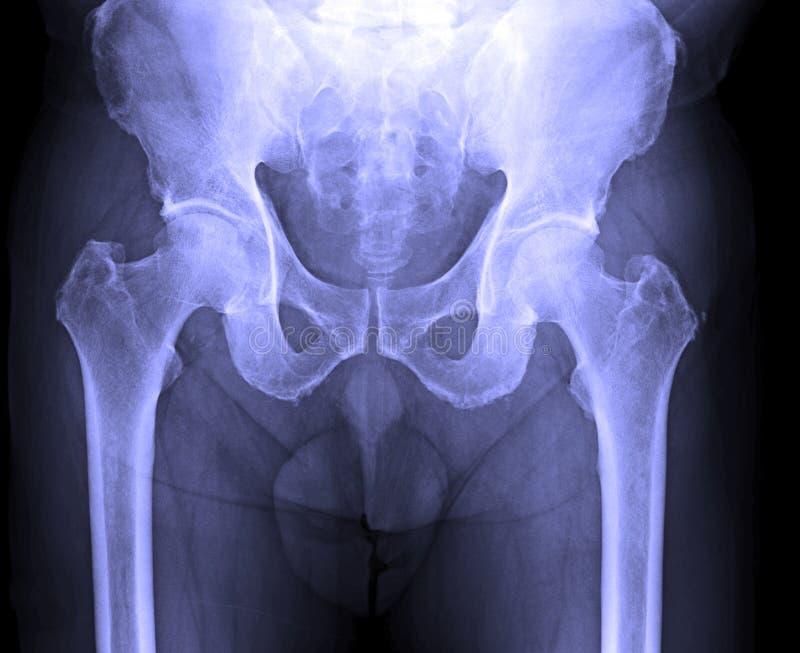 Η εικόνα ακτίνας X της αρσενικής ανθρώπινης σπονδυλικής στήλης, σχίζει, λεκάνη στοκ εικόνα