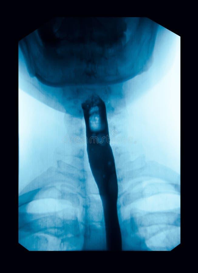 Η εικόνα του των ακτίνων X ανωτέρου γαστροεντερική (UGI), Esophagram στοκ φωτογραφίες με δικαίωμα ελεύθερης χρήσης
