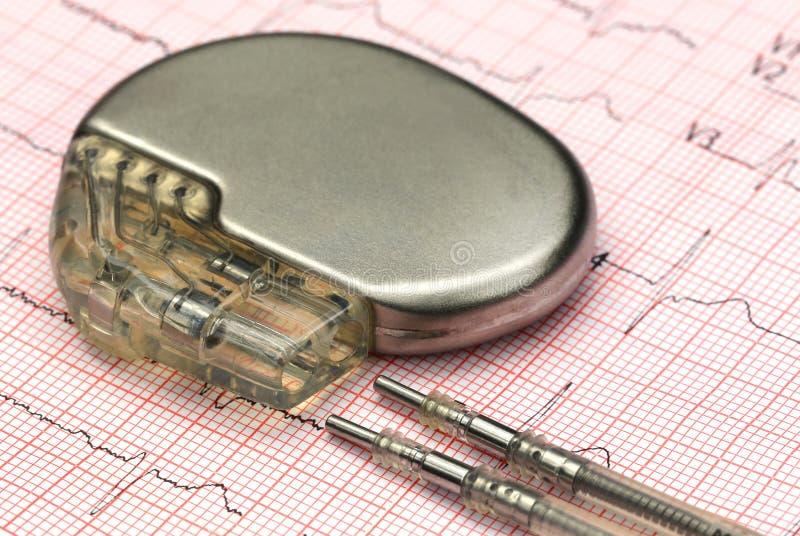 Ηλεκτροκαρδιογράφος με το βηματοδότη στοκ φωτογραφίες με δικαίωμα ελεύθερης χρήσης