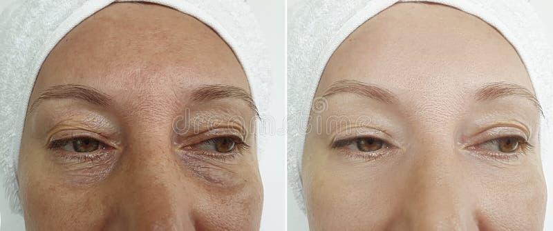 Η ηλικιωμένη γυναίκα προσώπου ζαρώνει πριν και μετά από τη θεραπεία θεραπείας διαφοράς διορθώσεων στοκ φωτογραφίες με δικαίωμα ελεύθερης χρήσης