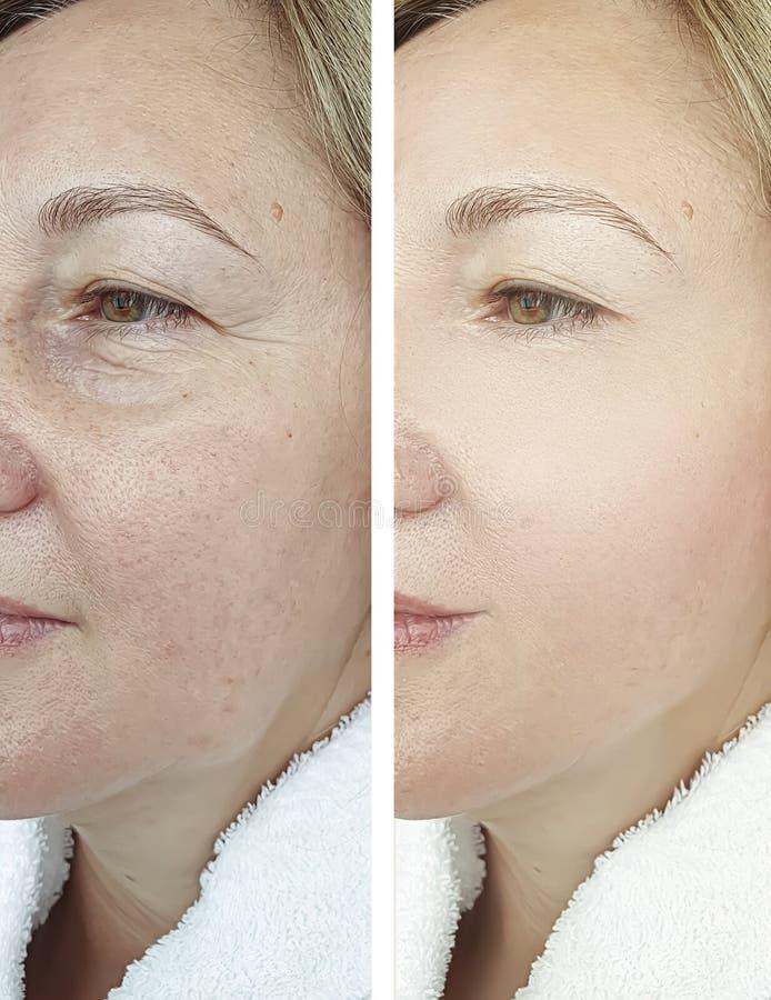 Η ηλικιωμένη γυναίκα προσώπου ζαρώνει πριν και μετά από cosmetology τη θεραπεία θεραπείας διαφοράς διορθώσεων στοκ φωτογραφία με δικαίωμα ελεύθερης χρήσης