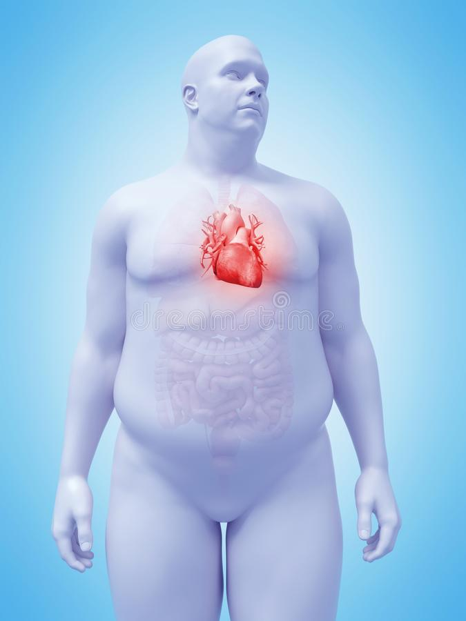 Η καρδιά ενός παχύσαρκου manδιανυσματική απεικόνιση