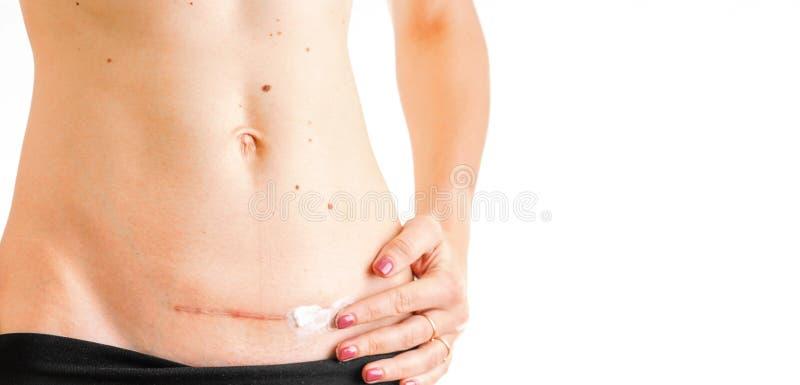 Η κοιλιά γυναικών με την ιατρική κρέμας θεραπείας σημαδιών γ Cesarean απομόνωσε την άσπρη έννοια υποβάθρου στοκ εικόνες
