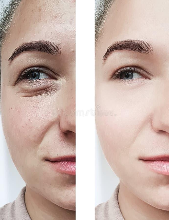 η ομορφιά κοριτσιών ζαρώνει τα μάτια πριν και μετά από cosmetology τις διαδικασίες στοκ φωτογραφίες με δικαίωμα ελεύθερης χρήσης