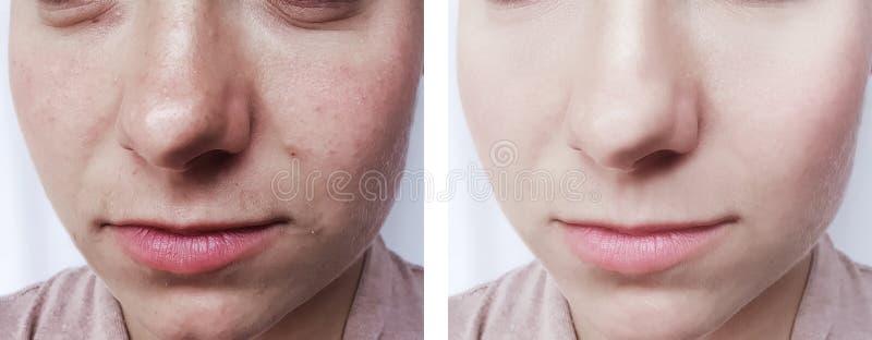 η ομορφιά κοριτσιών ζαρώνει την αφαίρεση ματιών πριν και μετά από cosmetology τις διαδικασίες στοκ εικόνες