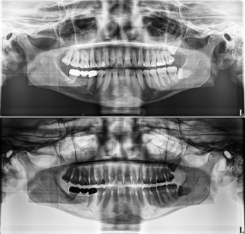 Η πανοραμική οδοντική ακτίνα X, σταθερά δόντια, οδοντική σφραγίδα αμαλγαμάτων, δόντια φρόνησης στην πλευρά, προσέκρουσε οριζόντια στοκ εικόνα