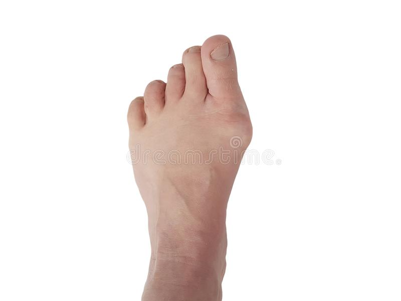 Η παραμόρφωση valgus Hallux, πόδια, απομόνωσε τις άσπρες, υπομονετικές πονώντας ενώσεις στοκ φωτογραφία με δικαίωμα ελεύθερης χρήσης