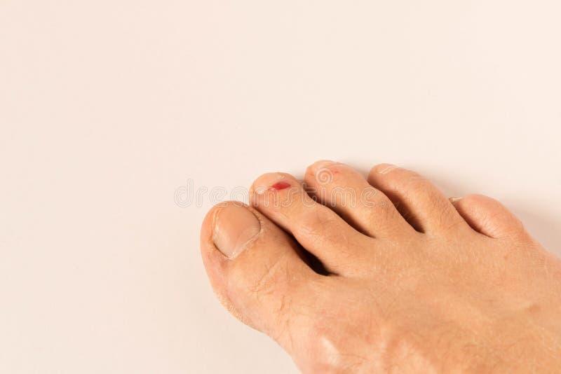 Η πληγή στο πόδι του Μια αιματηρή φουσκάλα στο δάχτυλό του o Στο ελαφρύ υπόβαθρο στοκ εικόνα