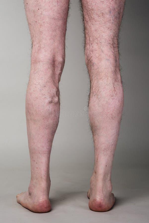 Η σφιχτή κιρσώδης φλέβα στο α επανδρώνει τα πόδια στοκ φωτογραφίες με δικαίωμα ελεύθερης χρήσης