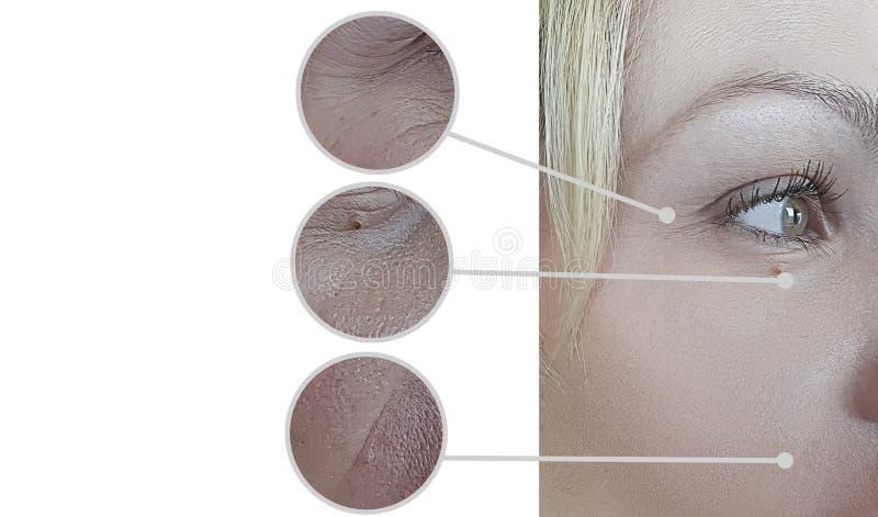 Θεραπεία ρυτίδων ματιών προσώπου γυναικών πριν και μετά από την ενυδάτωση cosmetology αναζωογόνησης της θεραπείας στοκ φωτογραφία με δικαίωμα ελεύθερης χρήσης