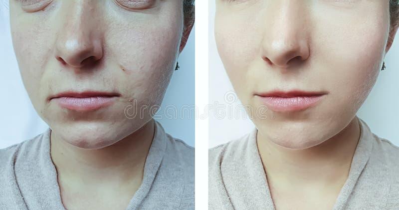 Θεραπεία ρυτίδων προσώπου γυναικών πριν και μετά από τη θεραπεία στοκ φωτογραφία με δικαίωμα ελεύθερης χρήσης