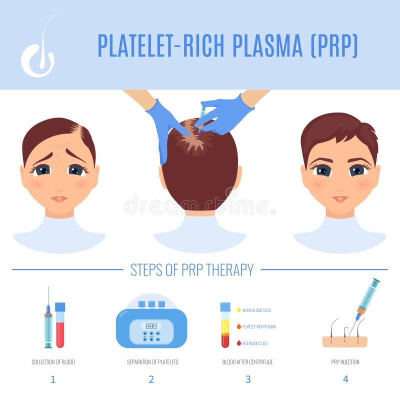 Θεραπεία PRP για τις γυναίκες διανυσματική απεικόνιση