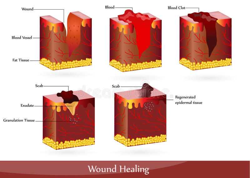 θεραπεύοντας πληγή απεικόνιση αποθεμάτων