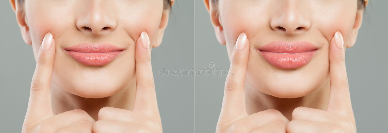 θηλυκά μέρη χειλικής αγάπης σωμάτων Χείλια γυναικών πριν και μετά από τις εγχύσεις χειλικών υλικών πληρώσεως στοκ φωτογραφία με δικαίωμα ελεύθερης χρήσης