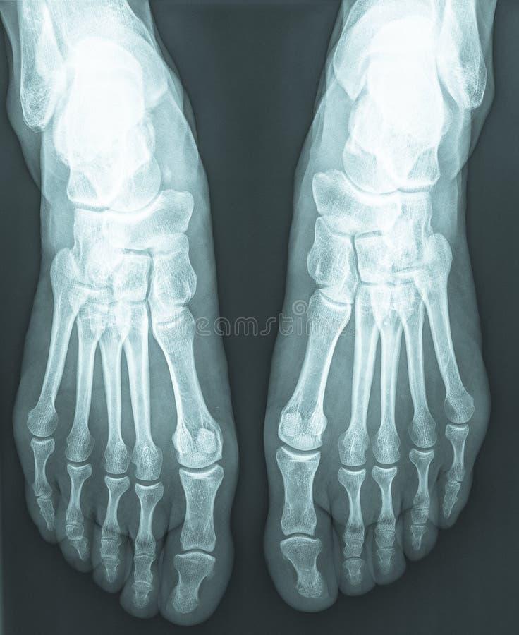θηλυκά πόδια των ακτίνων X ακτηνογραφιών στοκ φωτογραφία με δικαίωμα ελεύθερης χρήσης