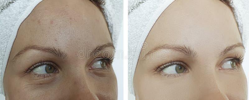 Θηλυκές ρυτίδες ματιών πριν και μετά από τη διόρθωση επίδρασης στοκ φωτογραφία με δικαίωμα ελεύθερης χρήσης
