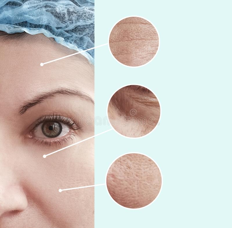 Θηλυκές ρυτίδες ομορφιάς πριν μετά από την ένταση επίδρασης beautician κολάζ διαφοράς στοκ εικόνα με δικαίωμα ελεύθερης χρήσης