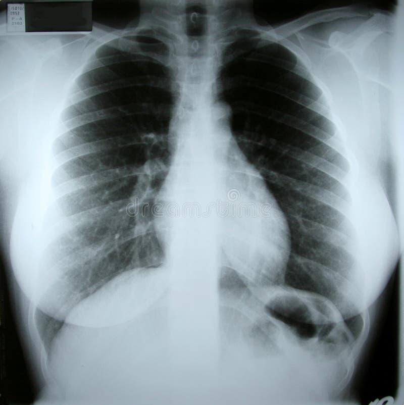 θηλυκή ακτίνα X torax στοκ εικόνες