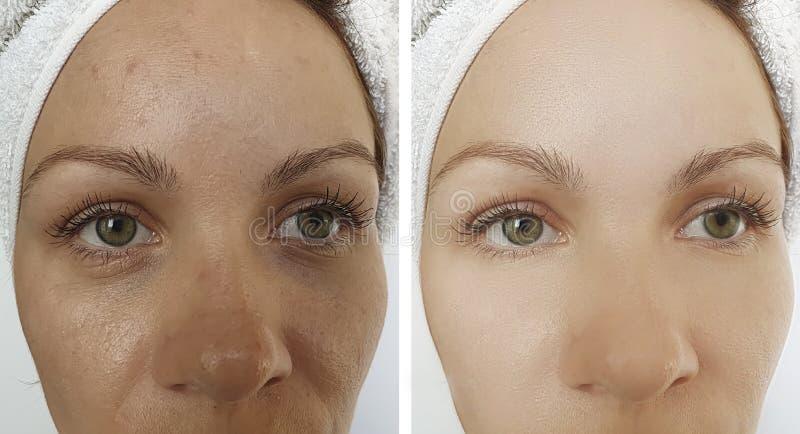 Θηλυκή αναζωογόνηση ρυτίδων ματιών πριν και μετά από τη διόρθωση επίδρασης στοκ φωτογραφία με δικαίωμα ελεύθερης χρήσης