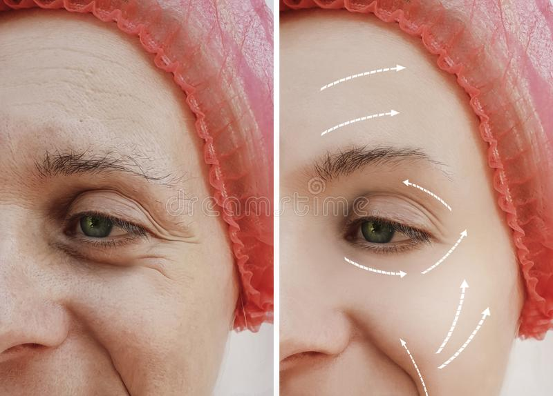 Θηλυκή ενήλικη του προσώπου ώριμη υπομονετική διαφορά θεραπείας ρυτίδων πριν και μετά από τις καλλυντικές διαδικασίες, βέλος στοκ εικόνα με δικαίωμα ελεύθερης χρήσης
