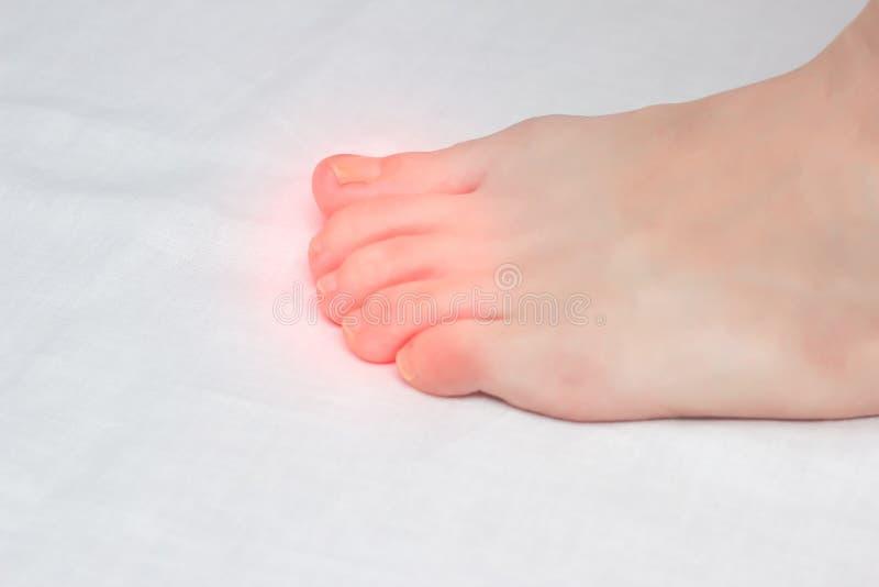 Θηλυκό πόδι με τη μυκητιακή μόλυνση στα toe, κινηματογράφηση σε πρώτο πλάνο, άσπρο υπόβαθρο, διάστημα αντιγράφων, δερματολογία στοκ φωτογραφία