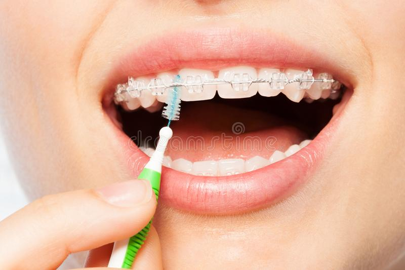 Θηλυκό στόμα με τα στηρίγματα και τη μεσοδόντια βούρτσα στοκ εικόνα με δικαίωμα ελεύθερης χρήσης