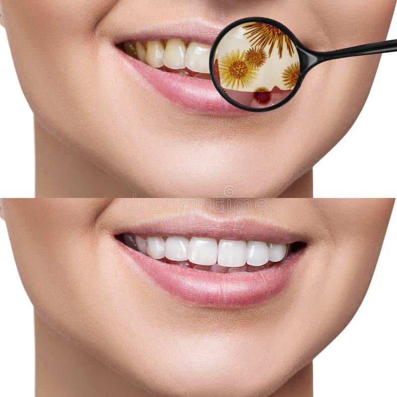 Θηλυκό χαμόγελο πριν και μετά από τα δόντια που καθαρίζουν από τα μικρόβια στοκ φωτογραφίες